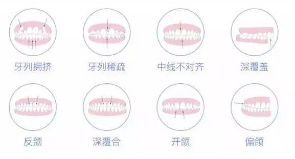 前牙歪怎么整形