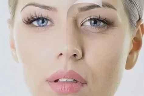 射频颈部除皱术维持时间有多长