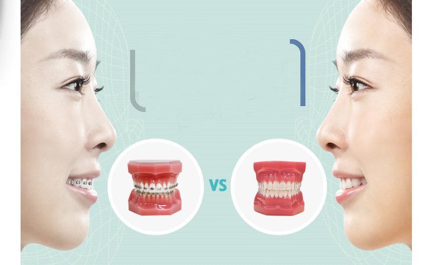 上海牙齿矫正医院排名
