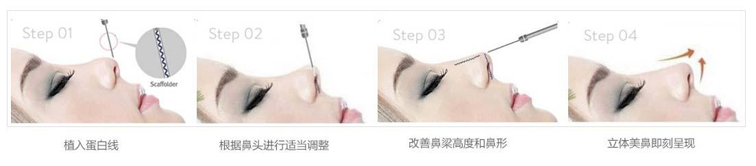 上海美莱医院做线雕隆鼻好吗
