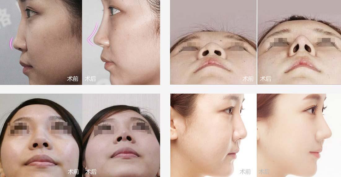上海美莱医院做线雕隆鼻效果真实案例