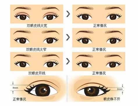 修复双眼皮是重做吗上海美莱