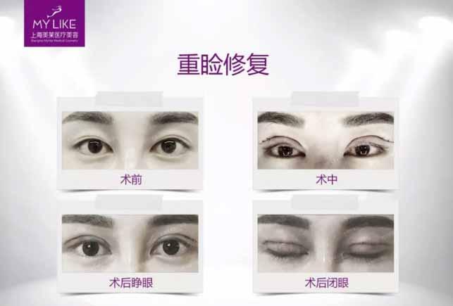 上海美莱双眼皮修复案例