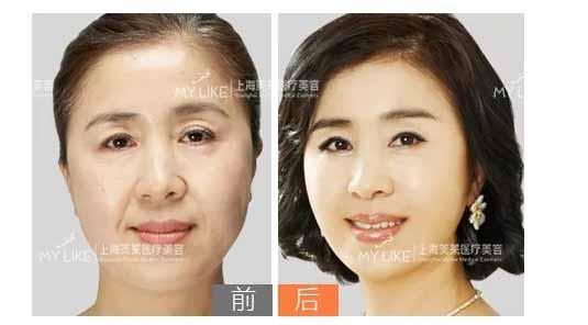 上海美莱线雕提拉抗衰老让您的青春定格