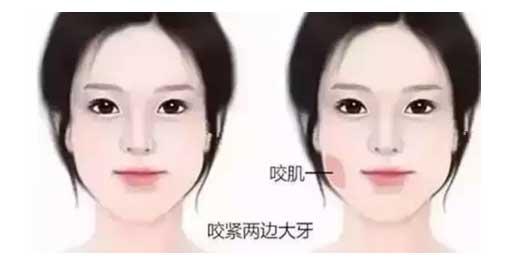 脸胖毁所有,上海美莱顺时V脸针¥688