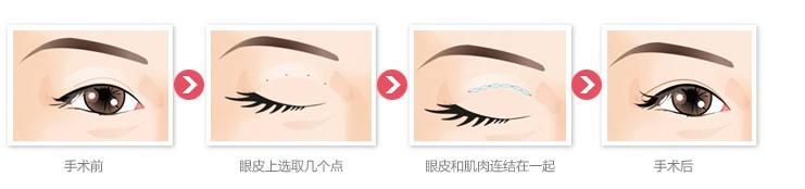 上海做全切双眼皮好吗