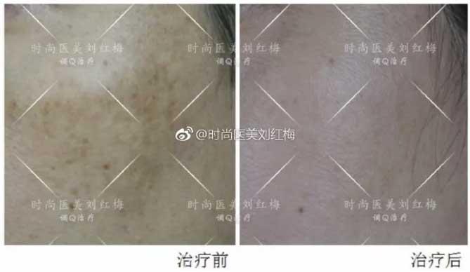 上海美莱刘红梅祛斑案例
