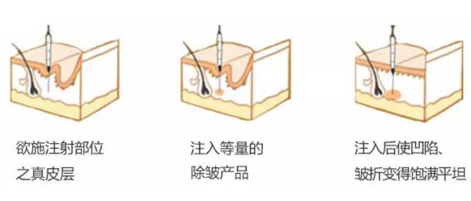 上海美莱综合除皱怎么样