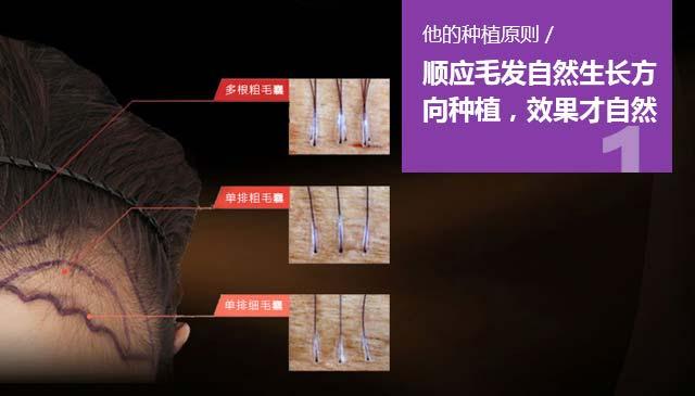 上海美莱袁玉坤毛发种植