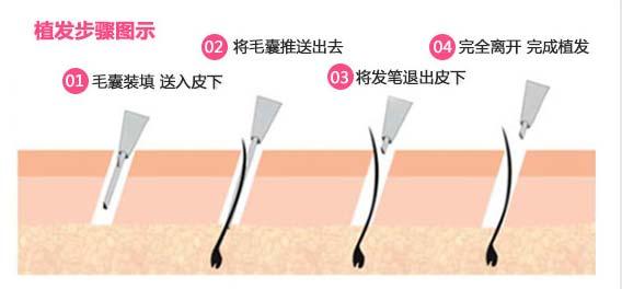 上海美莱毛发移植种植发际线优势