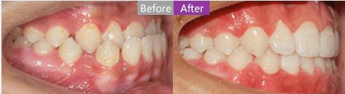 上海美莱口腔医生带您详细了解牙齿矫正必备知识