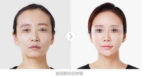 上海美莱申涛注射玻尿酸