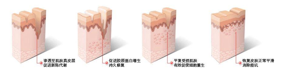 上海美莱祛痘怎么样