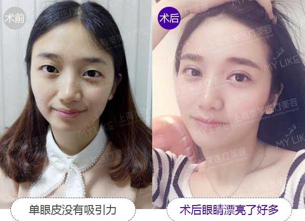 上海美莱余文捷美眼案例
