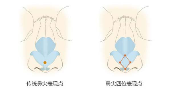 上海美莱卢建鼻尖精雕技术