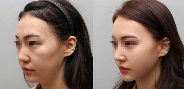 上海美莱卢建定制美鼻案例