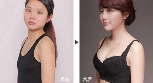 上海美莱欧阳天祥整形案例