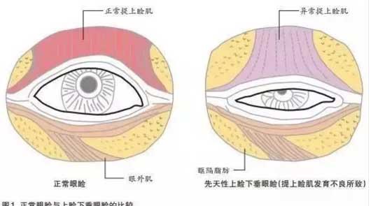 杜园园揭晓:矫正上睑下垂割个双眼皮就好了吗
