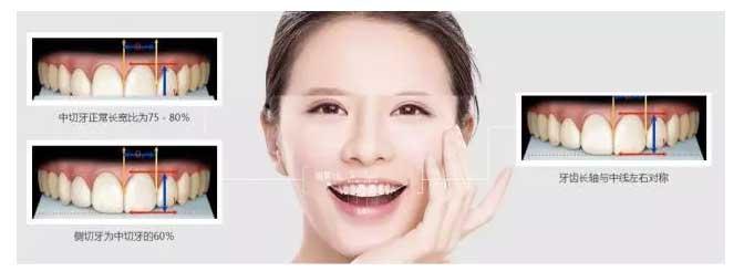 上海做牙齿的美容冠贵吗