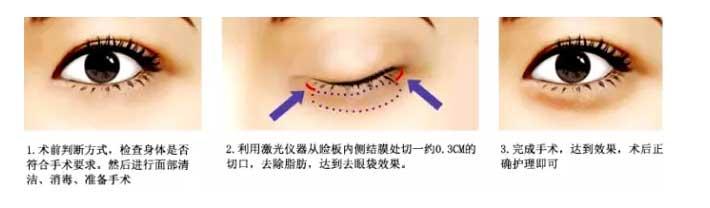 眼袋大是什么原因导致的呢,怎么直接消除