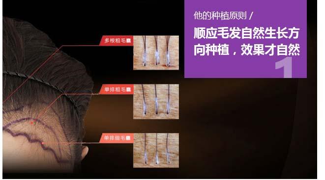 上海美莱植发袁玉坤技术很好吗