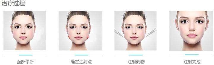 在打完瘦脸针的注意事项有哪些