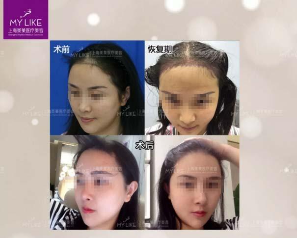 上海美莱植发际线真人案例