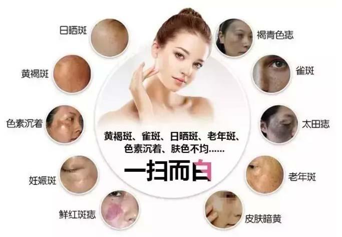 上海最新祛斑技术叫什么