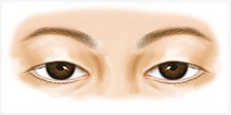 美莱眼皮下垂手术多少钱