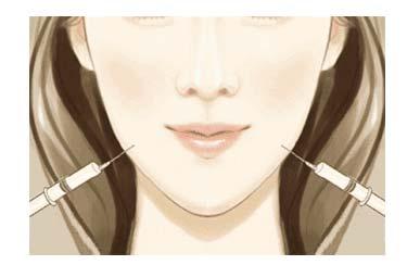 上海美莱V脸针5问—你想知道的都在这里