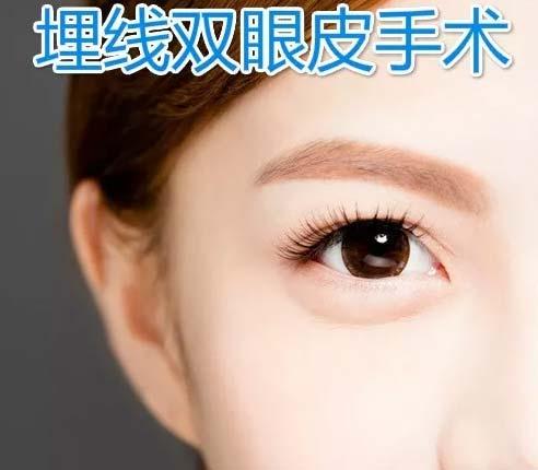 双眼皮埋线失败上海美莱修复效果怎么样