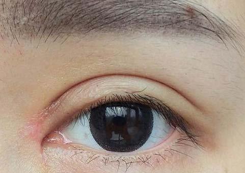 上海美莱怎样修补失败双眼皮