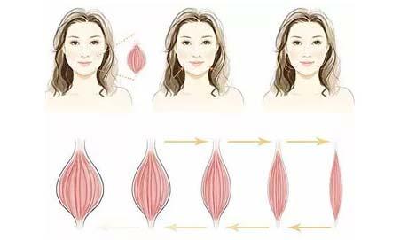 美莱注射瘦脸针和溶脂针的区别在哪里