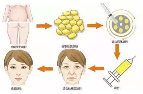 自体脂肪填充脸部可以维持多久