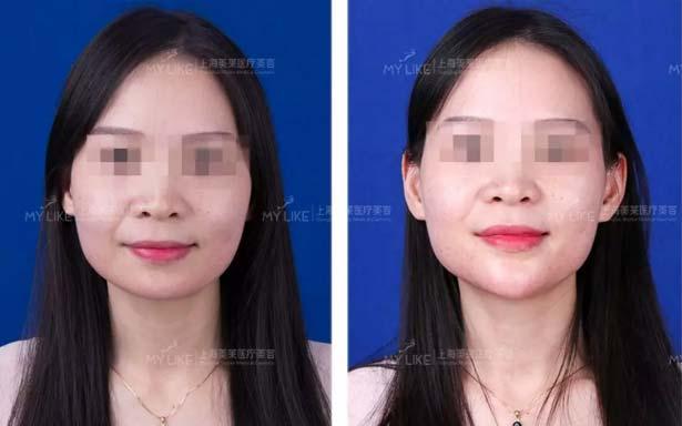 上海美莱玻尿酸案例