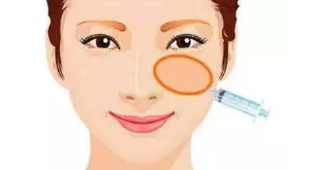 脸部进行脂肪填充怎样加快消肿