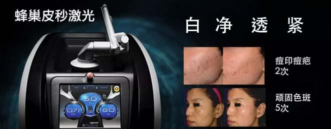 上海做一次皮秒祛斑能维持多久