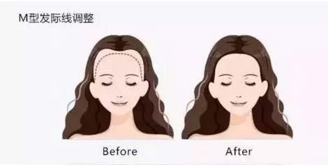 上海美莱发际线种植效果怎么样