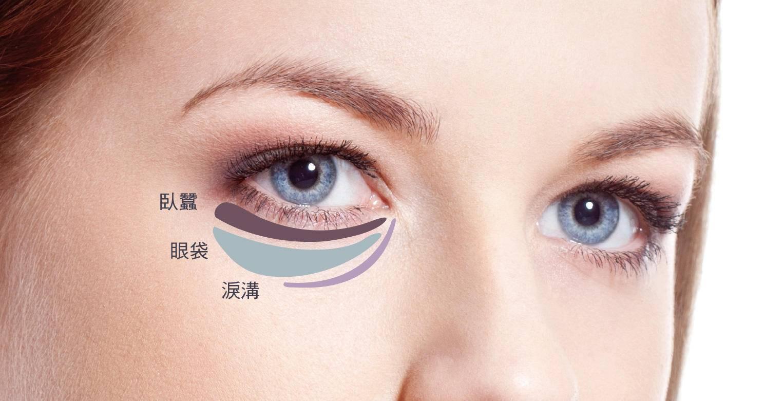 上海哪里可以去除眼袋