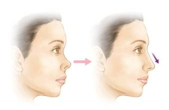 玻尿酸隆鼻打几次后能达到永久效果