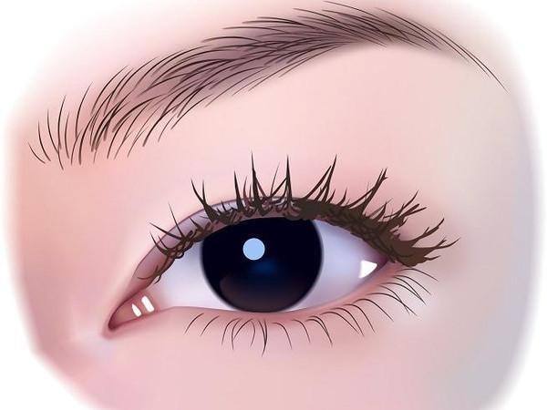 双眼皮术后拆线的时候疼吗