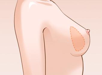 假体隆胸术后会看出手术痕迹吗