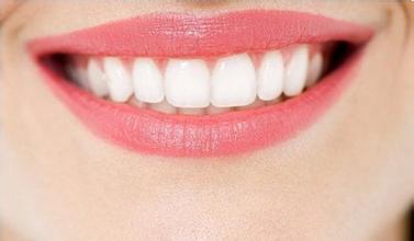 上海美莱冷光美白牙齿有哪些优点