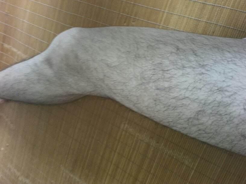 做激光脱腿毛会危害皮肤健康吗