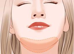 做假体隆下巴手术前注意事项有哪些呢