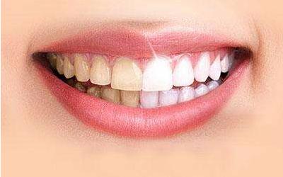 牙齿很黄怎么改善比较好呢