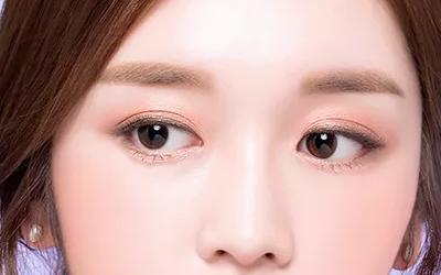 美莱的芭比大眼术后会留疤吗