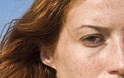 美莱激光祛斑后要多久才能化妆