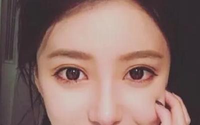 美莱开眼角会不会损伤眼睛视力