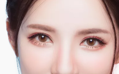 上海哪家医院割双眼皮不会留疤痕